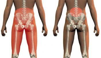 Information - Facet Joint Syndrome - Health Plus Chiropractic
