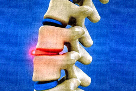 Possible-Disc-Injury-Health Plus Chiropractic & Acupuncture-450x300